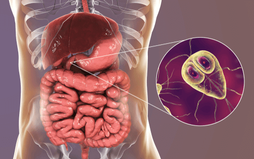 giardia infection in humans